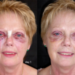 Recovery Time for an Eyelid Lift Procedure